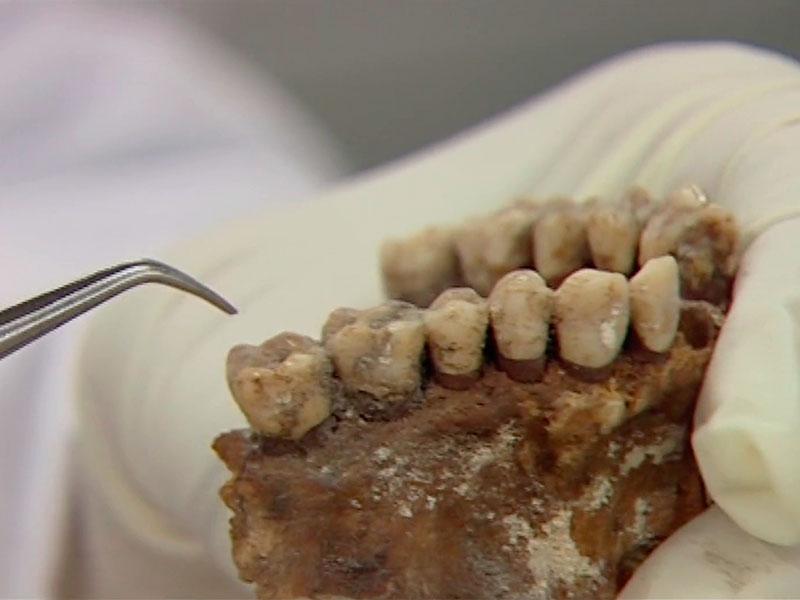 eine Zahnprobe geht nach England zu britischen Wissenschaftlern